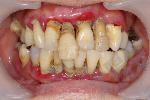 はちみつで虫歯予防?はちみつがお口に良い理由と …